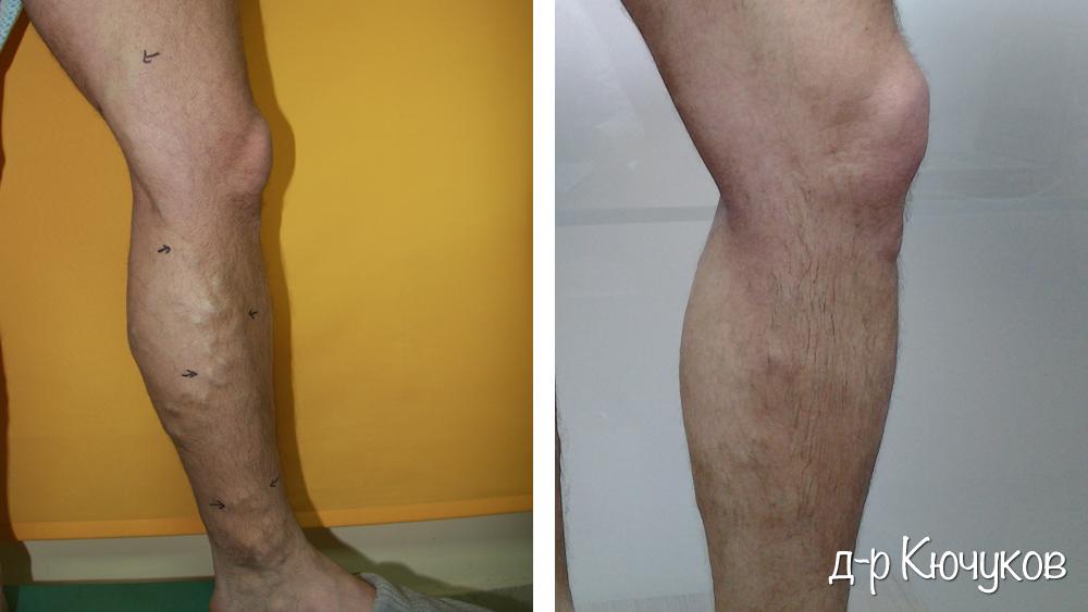 Лечение на разширени вени доктор Ангел Радев. | Д-р Ангел Радев